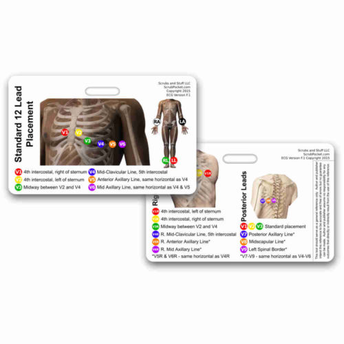EKG 12 Lead Placement Horizontal Badge Card